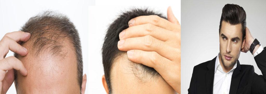 Hairline Making in Hair Transplants