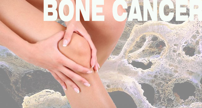 Bone Cancer: Symptoms, Treatment and Types